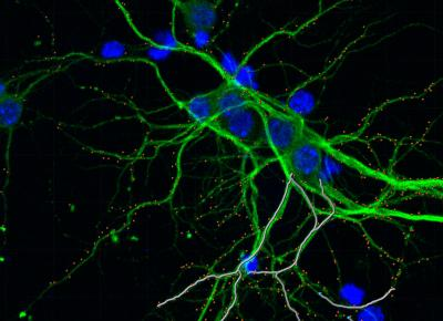 hippocampal neurons co-cultured with glioma cells